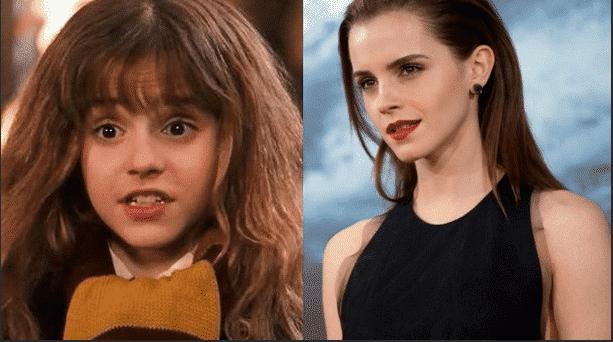 hermione_granger_emma_watson_avant_après_harry_potter